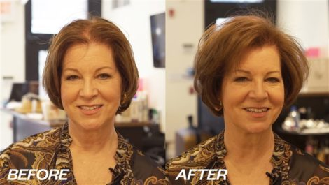 Before and After Hair Thinning Treatment In NYC